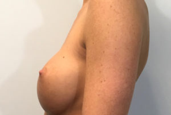 Breast Implant Removal and Replacement Gallery - Patient 4598848 - Image 3