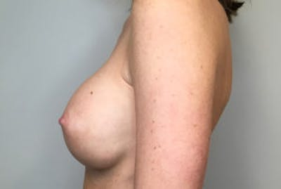 Breast Implant Removal and Replacement Gallery - Patient 4598848 - Image 4