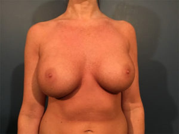 Breast Implant Removal and Replacement Gallery - Patient 4973947 - Image 1
