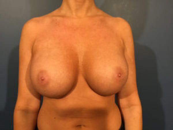 Breast Implant Removal and Replacement Gallery - Patient 4973947 - Image 2
