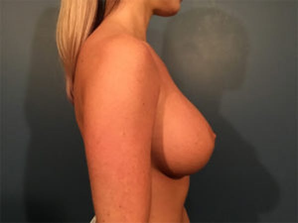 Breast Implant Removal and Replacement Gallery - Patient 4973947 - Image 3