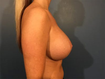 Breast Implant Removal and Replacement Gallery - Patient 4973947 - Image 4