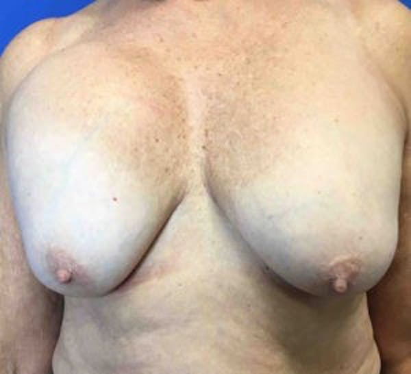 Breast Implant Removal and Replacement Gallery - Patient 4598867 - Image 1
