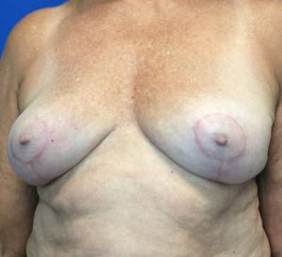 Breast Implant Removal and Replacement Gallery - Patient 4598867 - Image 2