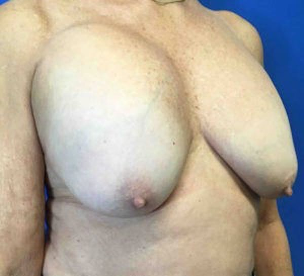 Breast Implant Removal and Replacement Gallery - Patient 4598867 - Image 3