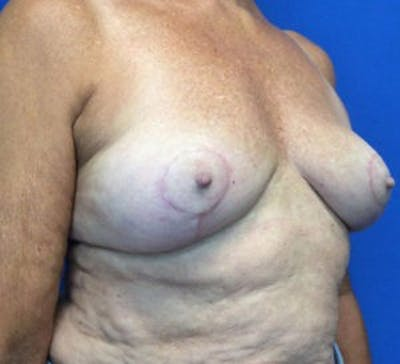 Breast Implant Removal and Replacement Gallery - Patient 4598867 - Image 4