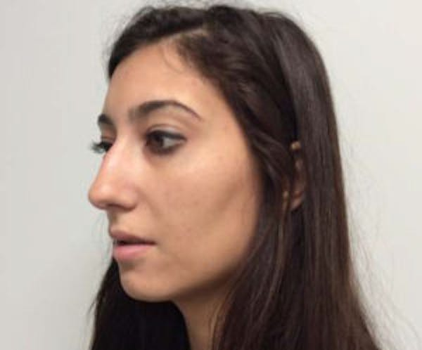 Chin Augmentation Gallery - Patient 4598888 - Image 3