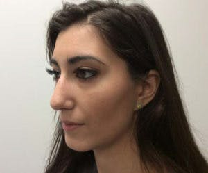 Chin Augmentation Gallery - Patient 4598888 - Image 4