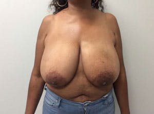 Breast Reduction Gallery - Patient 4594953 - Image 1