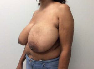 Breast Reduction Gallery - Patient 4594953 - Image 2