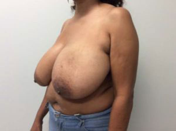Breast Reduction Gallery - Patient 4594953 - Image 3