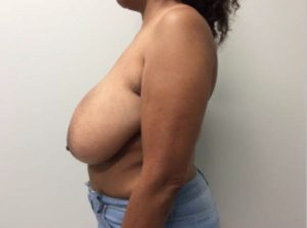 Breast Reduction Gallery - Patient 4594953 - Image 5
