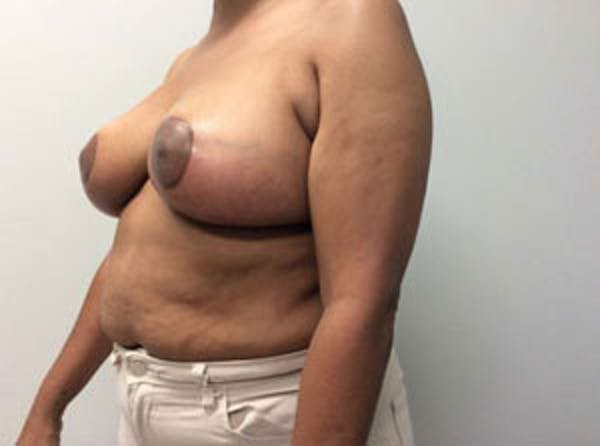 Breast Reduction Gallery - Patient 4594953 - Image 4