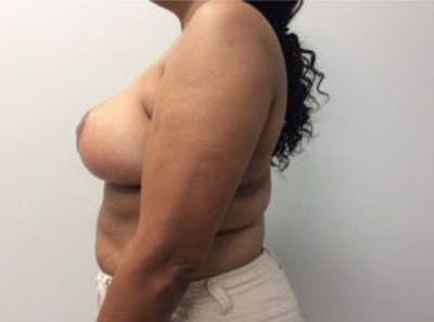 Breast Reduction Gallery - Patient 4594953 - Image 6