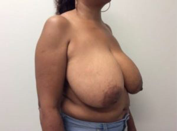 Breast Reduction Gallery - Patient 4594953 - Image 7