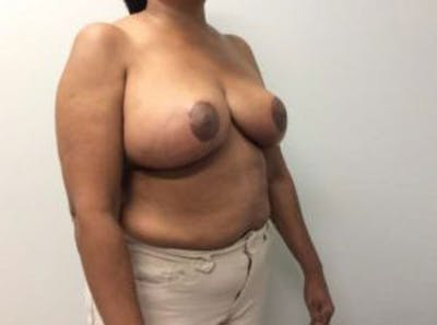 Breast Reduction Gallery - Patient 4594953 - Image 8