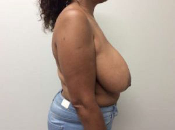 Breast Reduction Gallery - Patient 4594953 - Image 9