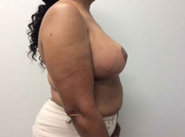 Breast Reduction Gallery - Patient 4594953 - Image 10