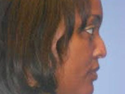 Rhinoplasty Gallery - Patient 4595135 - Image 1