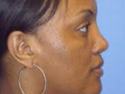 Rhinoplasty Gallery - Patient 4595135 - Image 2
