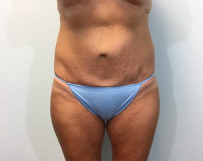 Non-Invasive Body Contouring Gallery - Patient 4710163 - Image 1