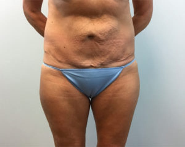 Non-Invasive Body Contouring Gallery - Patient 4710163 - Image 2