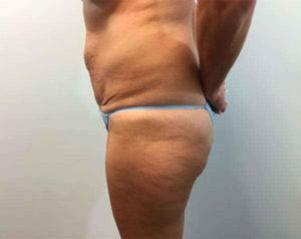 Non-Invasive Body Contouring Gallery - Patient 4710163 - Image 3