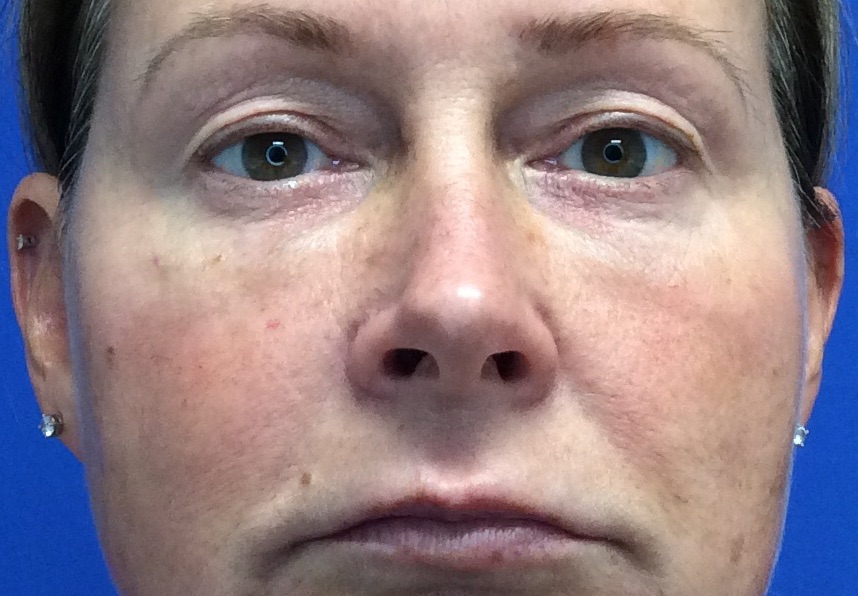 Blepharoplasty Gallery - Patient 4595101 - Image 10