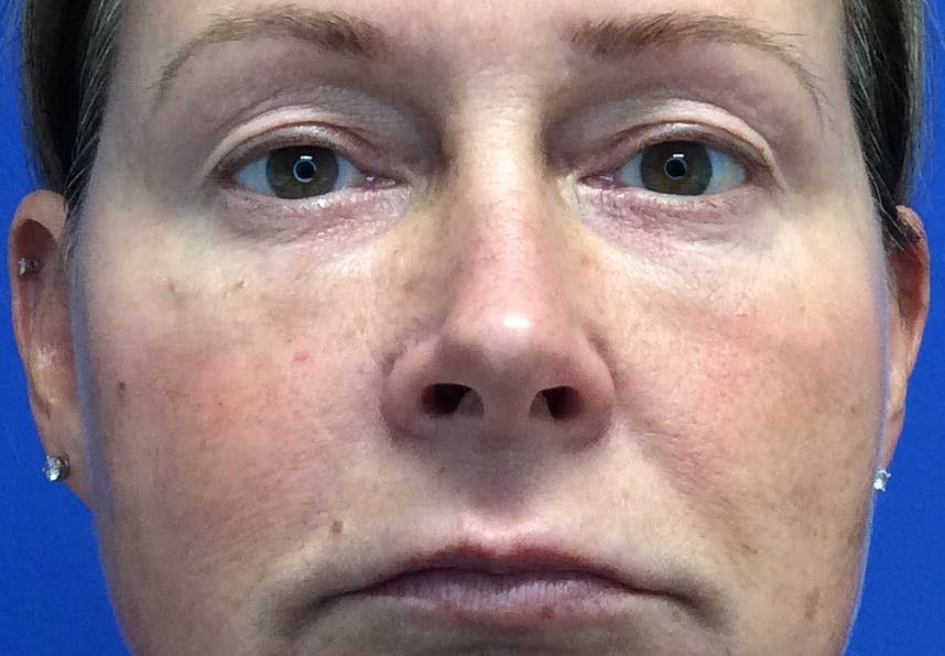 Blepharoplasty Gallery - Patient 4595101 - Image 1