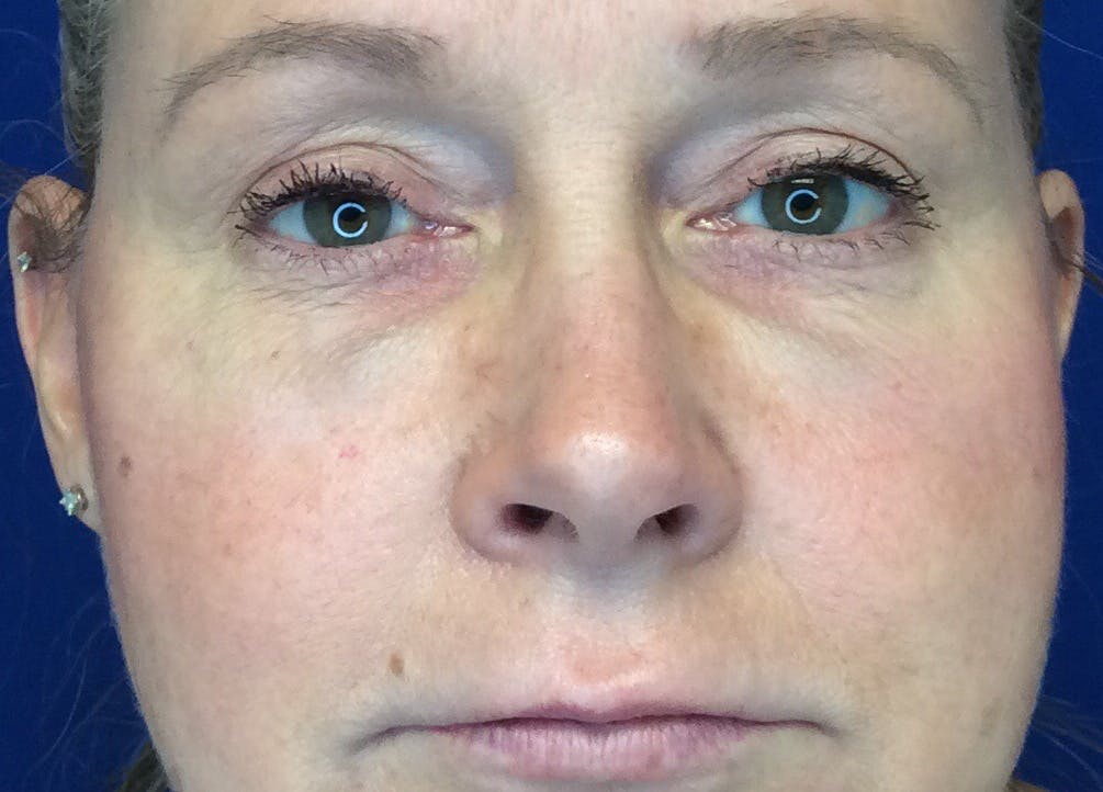 Blepharoplasty Gallery - Patient 4595101 - Image 2
