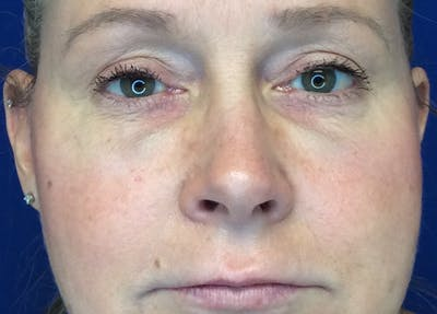 Blepharoplasty Gallery - Patient 4595101 - Image 2