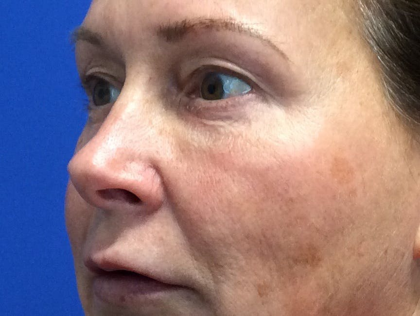 Blepharoplasty Gallery - Patient 4595101 - Image 3