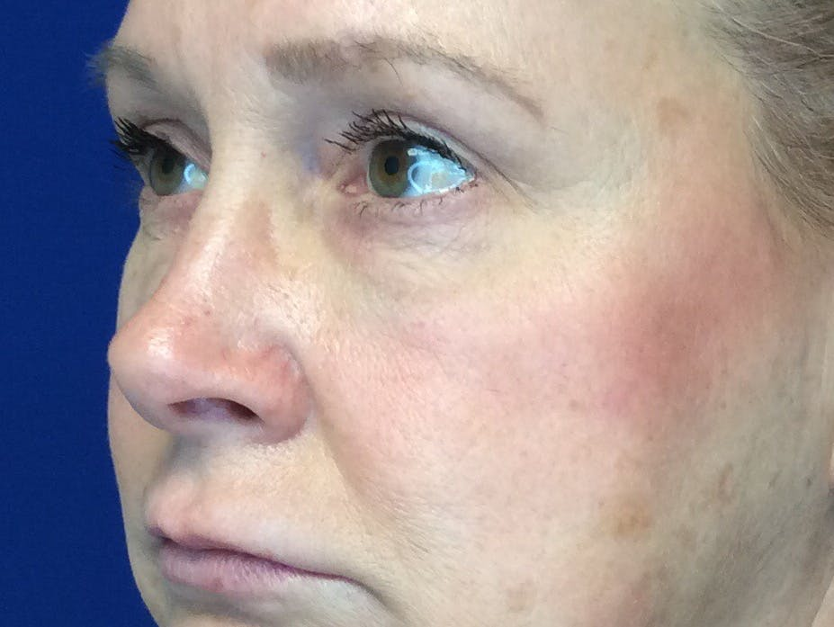 Blepharoplasty Gallery - Patient 4595101 - Image 4