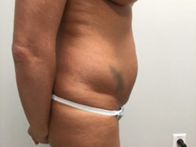 Liposuction Gallery - Patient 4726802 - Image 1