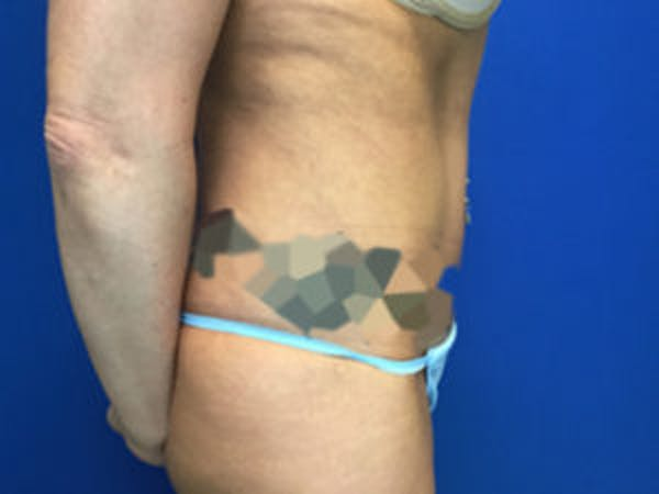 Liposuction Gallery - Patient 4726802 - Image 2