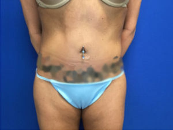 Liposuction Gallery - Patient 4726802 - Image 4
