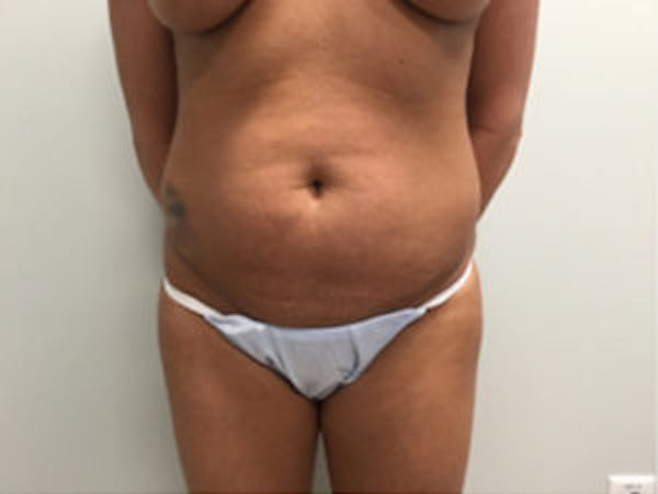 Liposuction Gallery - Patient 4726802 - Image 3