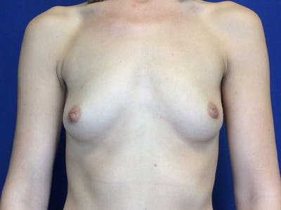 Breast Augmentation Gallery - Patient 4868530 - Image 1
