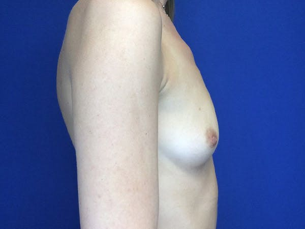 Breast Augmentation Gallery - Patient 4868530 - Image 5