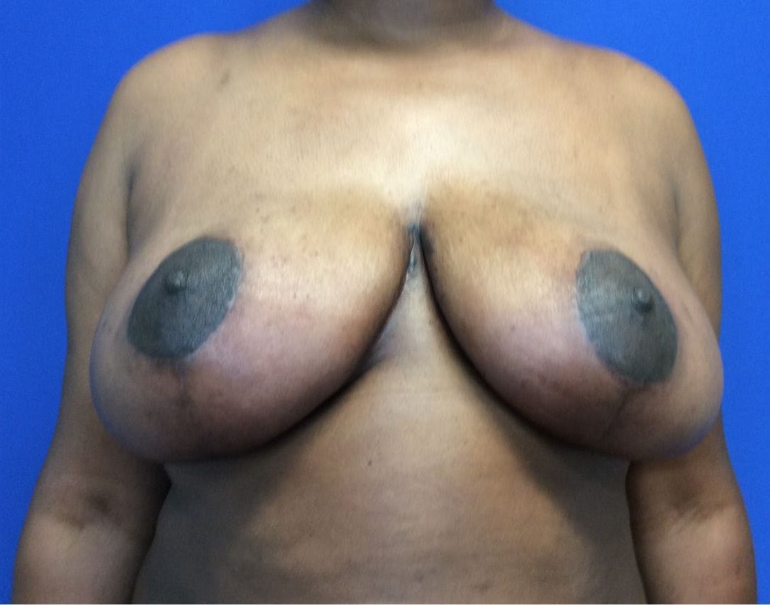 Breast Reduction Gallery - Patient 4890903 - Image 2