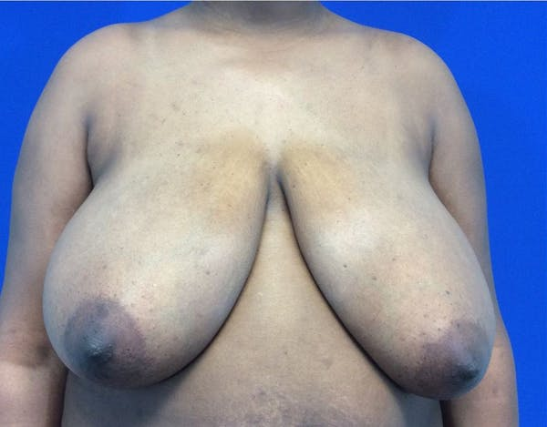 Breast Reduction Gallery - Patient 4890903 - Image 1