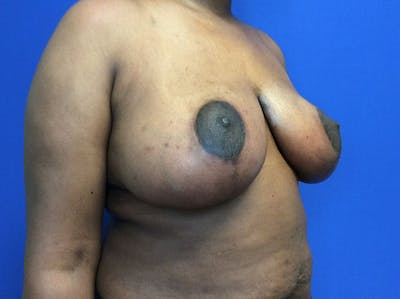 Breast Reduction Gallery - Patient 4890903 - Image 4
