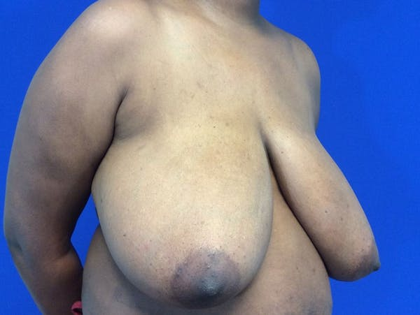 Breast Reduction Gallery - Patient 4890903 - Image 3