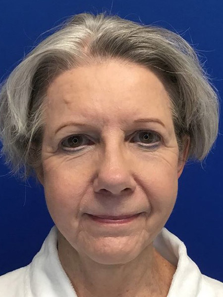 Blepharoplasty Gallery - Patient 4891387 - Image 14