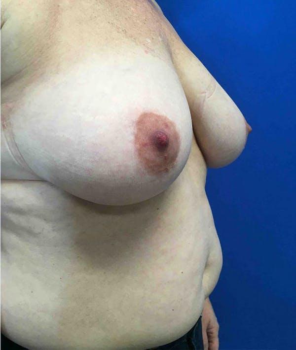 Mastopexy Gallery - Patient 4910306 - Image 3