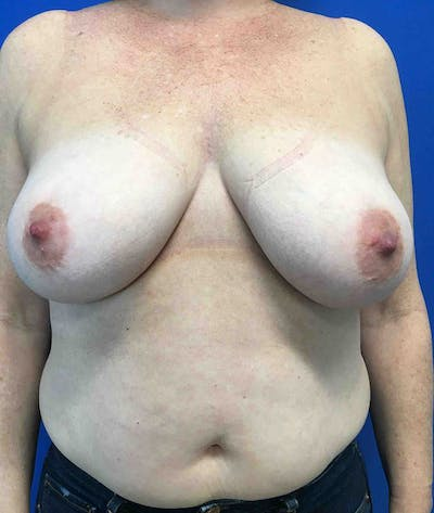 Liposuction Gallery - Patient 4910308 - Image 1