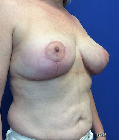 Liposuction Gallery - Patient 4910308 - Image 4