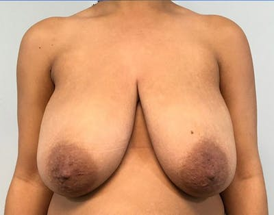 Breast Reduction Gallery - Patient 4930554 - Image 1