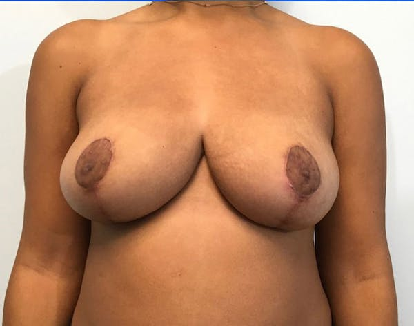 Breast Reduction Gallery - Patient 4930554 - Image 2