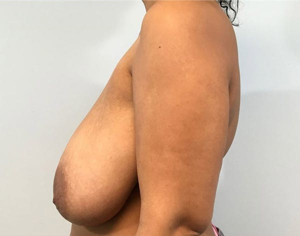 Breast Reduction Gallery - Patient 4930554 - Image 3